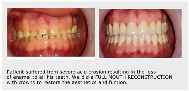 Before-after-smile-makeover-Stoke-on-Trent