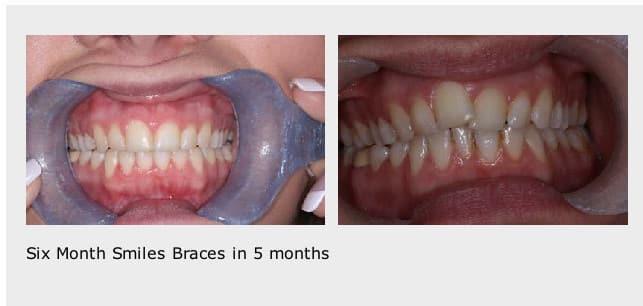 6-month-braces