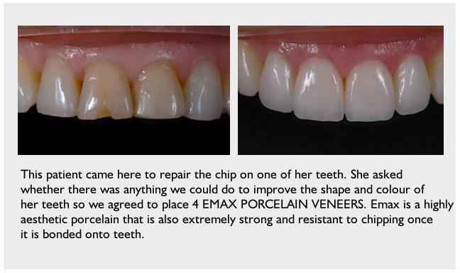 porcelian-veneers-Stoke-on-Trent