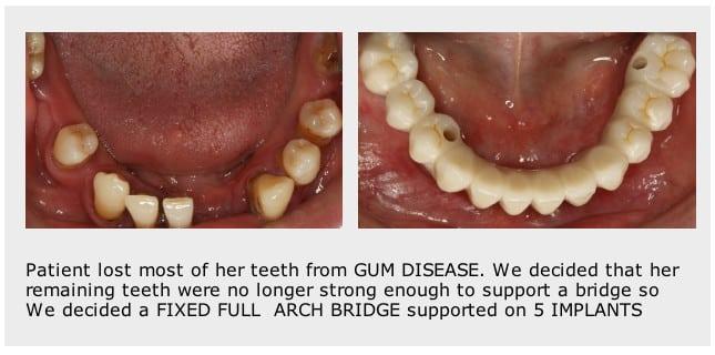 dental-implants-Stoke-on-Trent