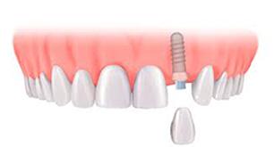 Dental Implants Stoke on Trent