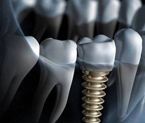 Leading provider of dental implants in Stoke-On-Trent