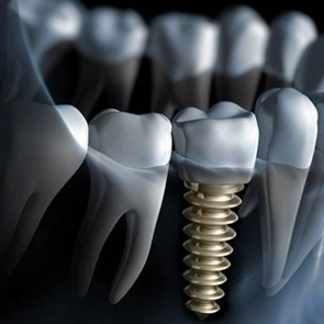 Leading provider of dental implants in Stoke-On-Trent