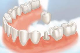 Crowns and Bridges - cosmetic dentist Stoke on Trent