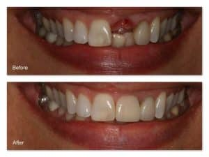 Dental Implant Stoke