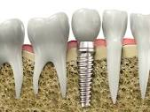 Dental Implants near Newcastle Under Lyme