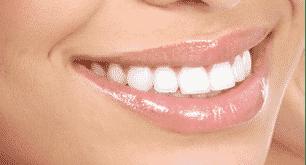 Teeth whitening - cosmetic dentist Stoke on Trent
