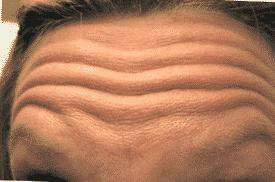 forehead lines botox stoke