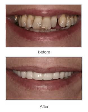full mouth dental implants stoke