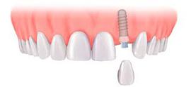 single dental implant stoke