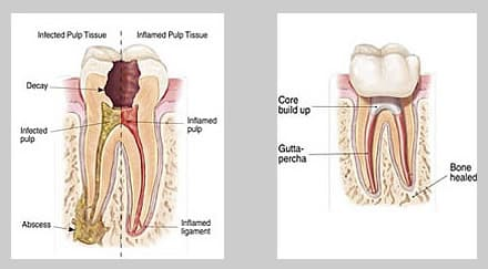 root canal treatment stoke on trent