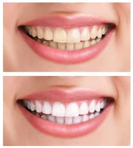 teeth whitening in stoke on trent