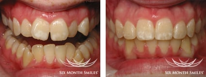 Before and after six month smiles braces