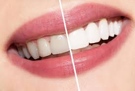 Teeth Whitening Special Offer January 2017