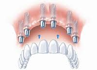 full arch implants