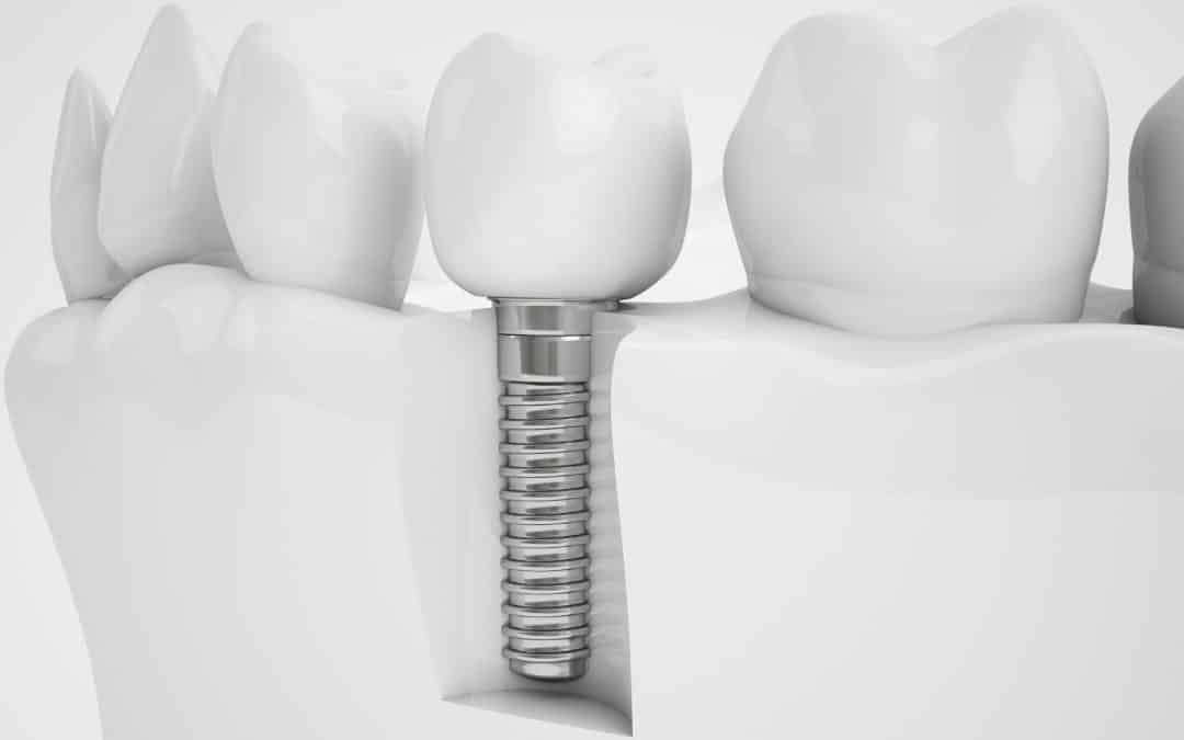 Dental implant cost, procedure and benefits