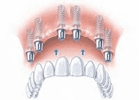 dental implants stoke on trent