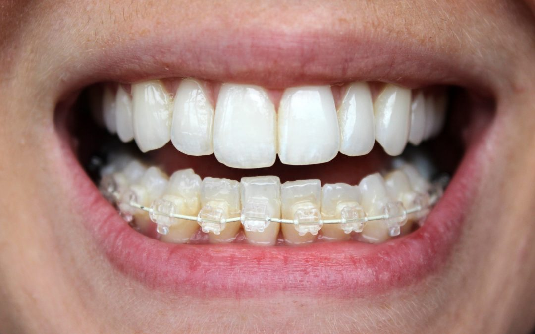 the journey to a six month smile
