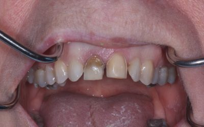 A leading oral surgeon for Stoke-on-Trent