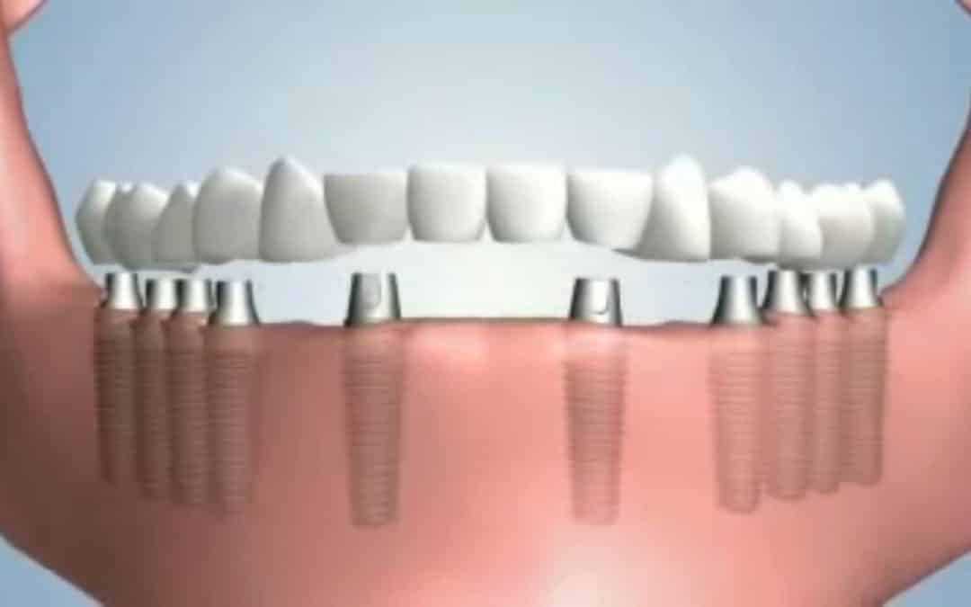Dental implants Stoke-on-Trent