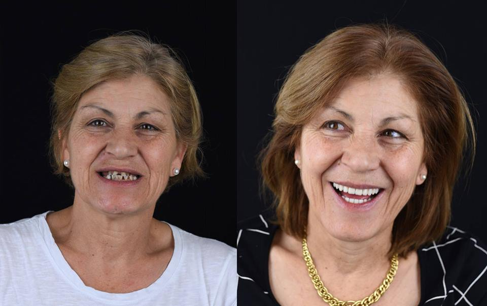 "Gill's experience with ""All-on-4"" Dental Implants"