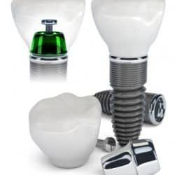 Learn about the benefits of Dental Implants