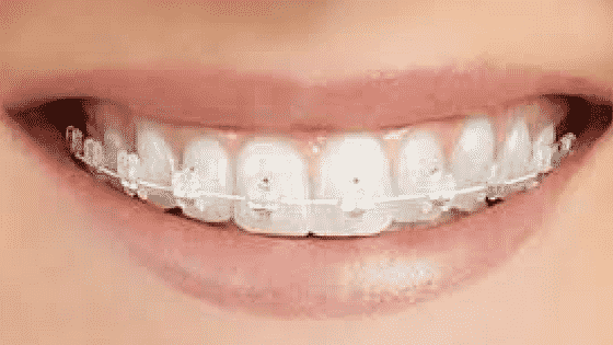 The best clear braces Stoke On Trent