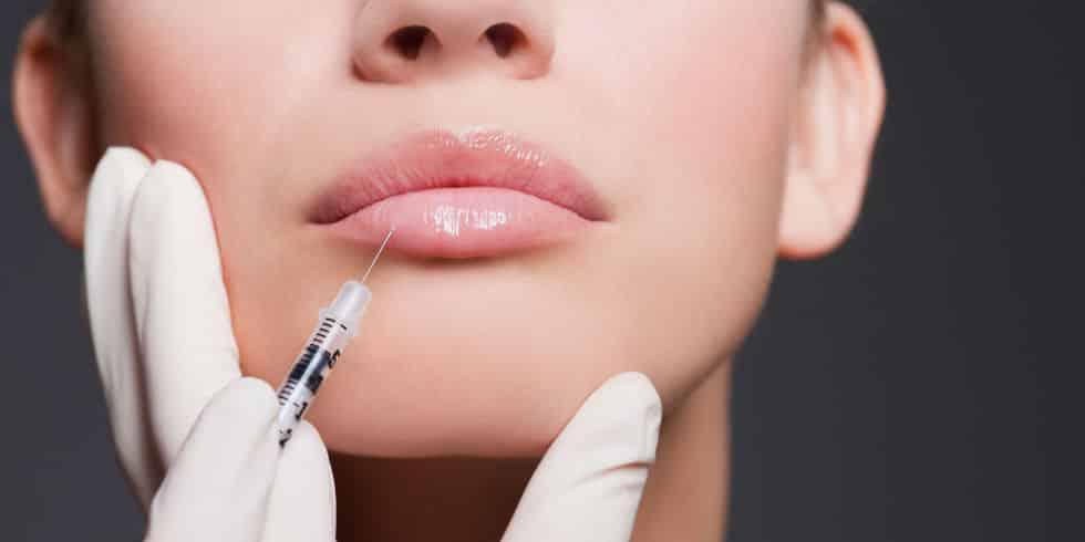 lip filler treatment in Stoke On Trent