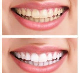The truth about teeth whitening