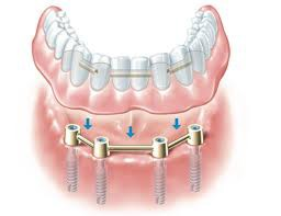 Denture retained by implants