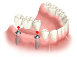 multiple dental implants