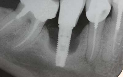 Going abroad for dental implants may not be a bargain