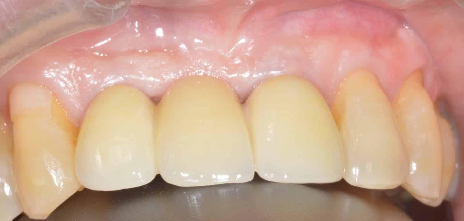 dental implant stoke on trent