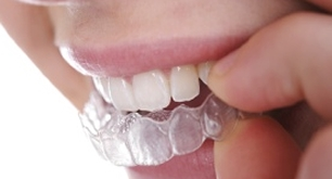 dental braces orthodontics stoke on trent