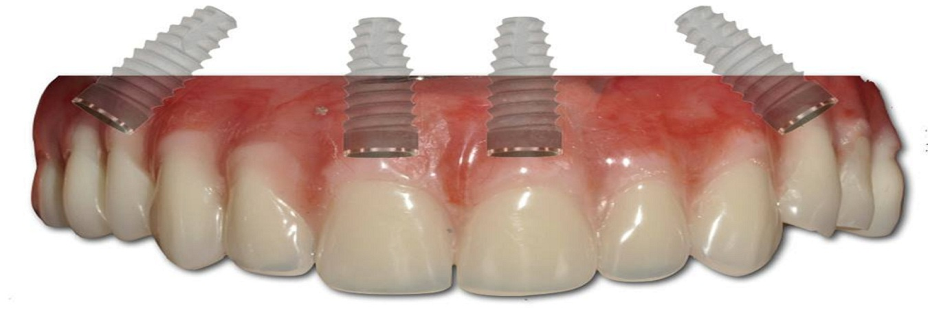 All On 4 Dental Implants Teeth In A Day In Stoke On Trent