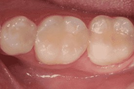 White Fillings | Bonding - cosmetic dentist Stoke on Trent