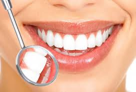Teeth whitening - cosmetic dentist Stoke on Trent