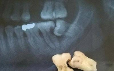 Looking for a local dentist who can remove wisdom teeth?